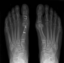 Foot Problems Home Care Agencies